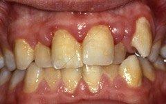 腫れ 抗生 物質 歯茎